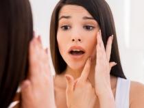 Scapa de acnee in mod natural. 7 remedii impotriva cosurilor