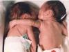 Imbratisarea care a salvat o viata: Povestea unor bebelusi care au schimbat medicina!