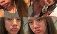 Buzele marite cu paharul, provocarea care deformeaza vedete si oameni obisnuiti