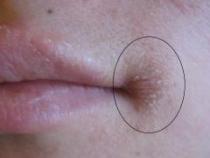 Ai observat si tu aceste crapaturi la colturile buzelor? Nu mai sta, mergi de urgenta la medic, este...