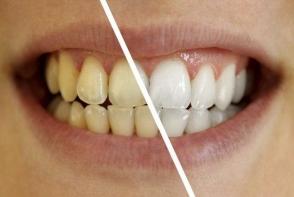 Trucul care iti albeste dintii fara sa mergi la dentist. Vezi care este el