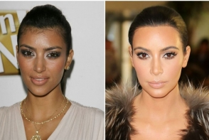 Fata ei s-a schimbat enorm in ultimii zece ani. Iata de ce arata atat de diferit - FOTO