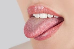 Priveste-ti limba! Daca observi asa ceva inseamna ca ai probleme mari - FOTO