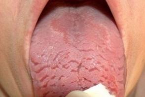 Daca limba ta arata asa, atunci nu ignora acest semn! Iata ce afectiune grava ai putea sa ai