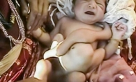 Un bebelus s-a nascut cu 8 picioare. Parintii nici nu se gandesc sa-l supuna unei interventii chirurgicale, considerandu-l un miracol - VIDEO