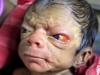 Un nou-nascut arata ca la 80 de ani. Parintii cand l-au vazut nu si-au mai putut stapani lacrimile - VIDEO