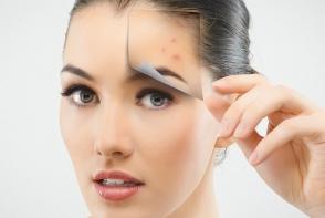 Cum sa scapi de acnee in functie de tipul acesteia. Iata ce produse trebuie sa folosesti - FOTO