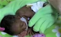 Un bebelus s-a nascut prematur la doar 6 luni. Este uluitor cum o manusa de spalat vasele i-a salvat viata - FOTO