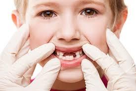 Atentie, parinti! Nu aruncati dintii de lapte ai copiilor: le-ar putea salva viata