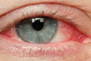 Simptomele unei boli grave apar la ochi. Ce se intampla cand vezi