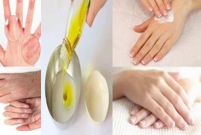 Temperaturile scazute ti-au afectat mainile? Cum scapi de pielea aspra si uscata - FOTO
