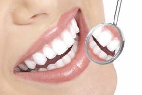 Cariile dentare iti dau batai de cap? Cum sa le tratezi natural - FOTO