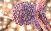 Alimentul care raspandeste cancerul in tot corpul. Renunta la el cat mai rapid, iti poate provoca moartea