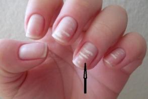 Iti faci griji cand apar? Ce spun medicii despre petele albe de pe unghii - FOTO