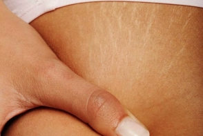 Esti victima vergeturilor? Cum poti sa scapi de semnele inestetice de pe corp - FOTO