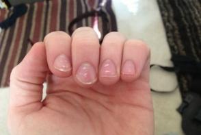 Ce reprezinta petele mici si albe de pe unghii