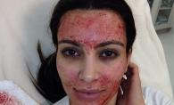 Crema faciala de 1000 de dolari, facuta din propriul sange! Este ultima fita in randul vedetelor - FOTO