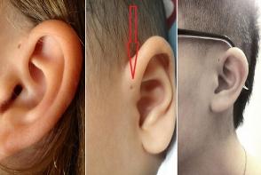 Ai si tu un orificiu deasupra urechii? Ce reprezinta de fapt si cat e de periculos acest