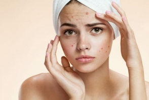 Scapa de acnee in 3 zile! Prinde cateva sfaturi pretioase - FOTO