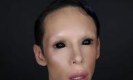 A cheltuit peste 50.000$ pentru a se transforma intr-un extraterestru asexuat. Cat e de schimbat dupa interventii