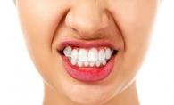 Scrasnitul din dinti. Care sunt cauzele si la ce riscuri esti supus - FOTO
