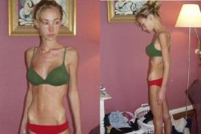 Tinea diete si se infomenta, pana la anorexie. Tanara arata senzational dupa transformarea uimitoare prin care a trecut - FOTO