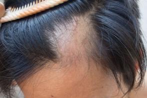 Caderea parului poate avea un impact major asupra fiecaruia dintre noi. Alopecia: simptome, cauze si tratament - FOTO