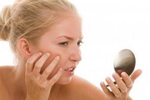 Scapa de pielea iritata! Iata cateva remedii naturale