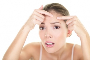 Acneea hormonala: 10 lucruri pe care ar trebui sa le stii