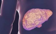 Hepatita este boala muta a ficatului. Simptomele pe care nu trebuie sa le ignori - FOTO